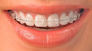 ortodonciaestetica